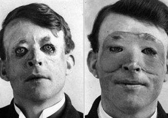 10 Foto Masa Lalu yang Aneh Sekaligus Mengagumkam, Salah Satunya Transplantasi Kulit Wajah Pertama