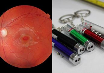 Jangan Sepelekan Pulpen Laser, Mata Anak Ini Berlubang Akibat Bermain Pulpen Laser