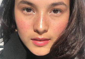 Chelsea Islan sampai BCL, 5 Artis Ini Rias Wajah dengan Freckles, Siapa Paling Cantik?