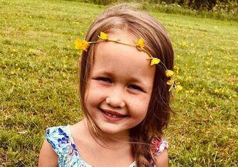 Ngeri! Diserang Anjing, Anak 4 Tahun Punya Bekas Luka Seumur Hidup di Wajah