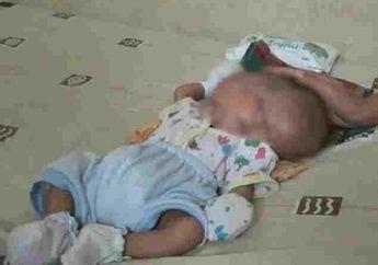 Bayi Asal Batam Lahir dengan Dua Wajah, Dua Otak, Tetapi Hanya Miliki Satu Kepala