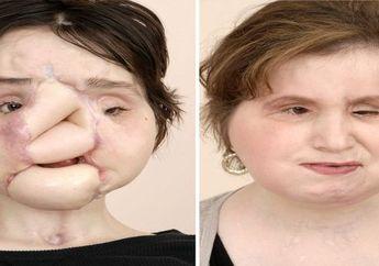 Inilah Transformasi Wajah Katie Stubblefield, si Penerima Transplantasi Wajah dari 7 Orang Lainnya