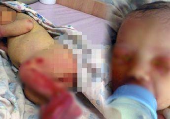 Penuh Luka Gigitan, Bayi Ini Ditemukan Masih Hidup di Hutan!