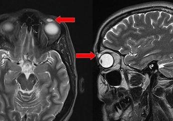 Ngeri! Selama 28 Tahun Perempuan Ini Tak Sadar Lensa Kontak Terjebak di Matanya