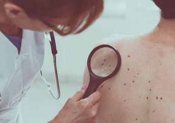 Peneliti Temukan Vaksin untuk Menyembuhkan Penyakit Kanker Kulit