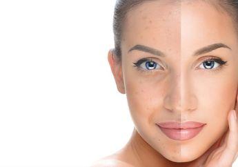 Cara Instan Bikin Kulit Wajah Putih dengan Sulam Bedak BB Glow Treatment