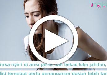 [VIDEO] Agar Cepat Pulih, Patuhi Pantangan Setelah Operasi Sesar Ini