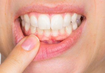 Jangan Remehkan Plak Gigi, Dampaknya Bisa ke Mana-mana Hingga Otak!