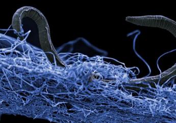 Cacing dengan Tiga Jenis Kelamin Ditemukan di Danau Mono California
