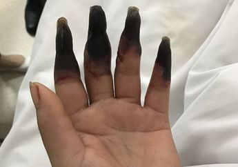 Jari-jarinya Berubah Menjadi Hitam Lebam Laiknya Membusuk, Penyakit Apa Ini?