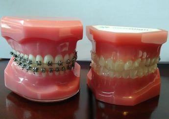 Clear Aligner: Inovasi Terbaru untuk Rapikan Gigi, Ini Kelebihannya Daripada Behel Biasa