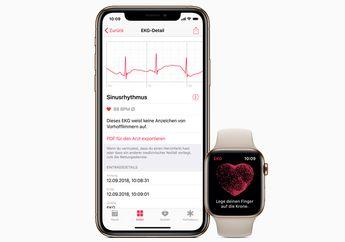 Daftar Negara yang Mendukung Fitur EKG di watchOS 5.2