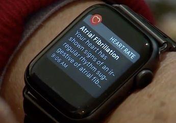 Apple Watch 6 Dapat Beri Peringatan Jika Pengguna Alami Serangan Panik