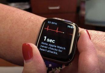 Apple Watch Selamatkan Nyawa Seorang Wanita yang Alami Masalah Jantung
