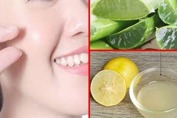 Berapa Lama Menghilangkan Jerawat Dengan Masker Peresan Air Lemon