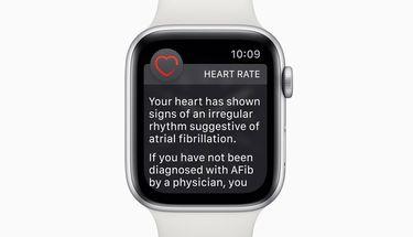 Sehari Setelah Rilis, Fitur ECG di Apple Watch Sudah Menyelamatkan Pengguna