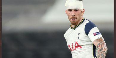 VIDEO - Sambil Berdarah-darah, Anak Asuh Mourinho Pamer Skill ala Zidane 2 Kali