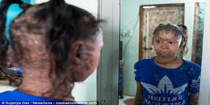Vedika berharap kondisinya bisa diperbaiki setidaknya 50 persen agar bisa percaya diri