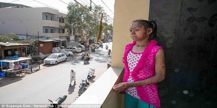 Vedika Gupta terpaksa mengurung diri di rumah