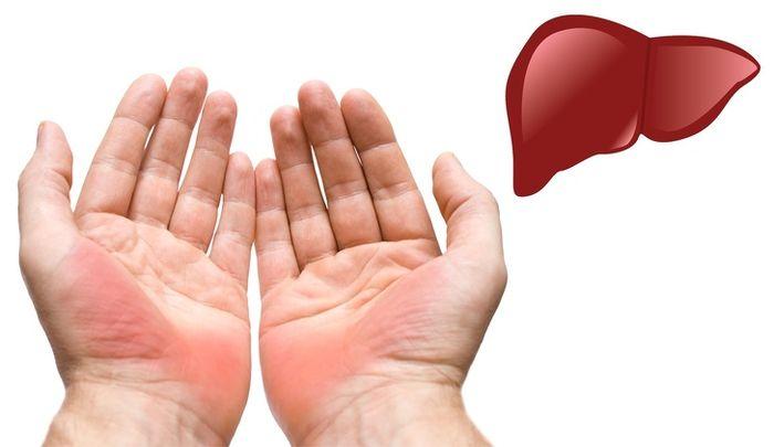 Telapak tangan merah