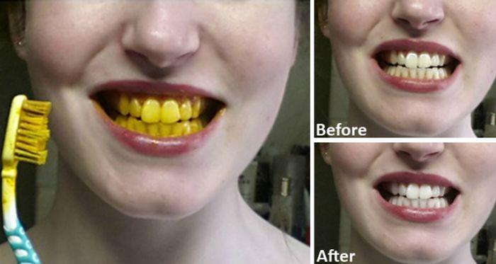 Bikin Gigi Kamu Putih Instan Dengan Bahan Alami Ini Biar Pede