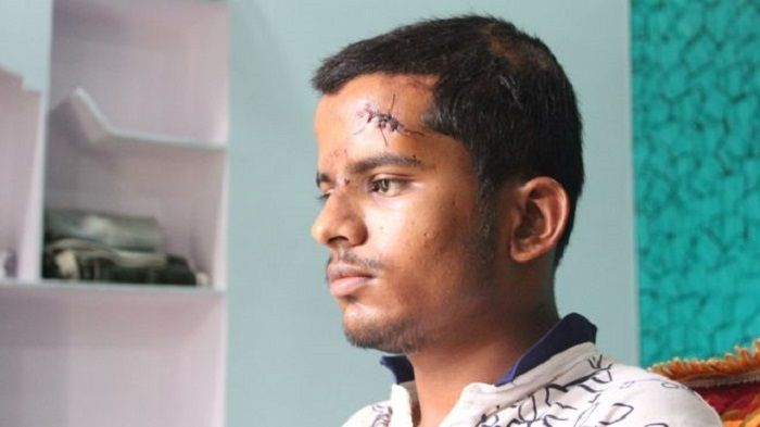 Salman masih shok, wajahnya penuh luka.