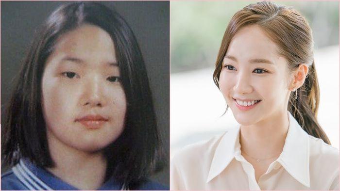 (Kiri) foto Park Min Young yang beredar sebelum operasi plastik