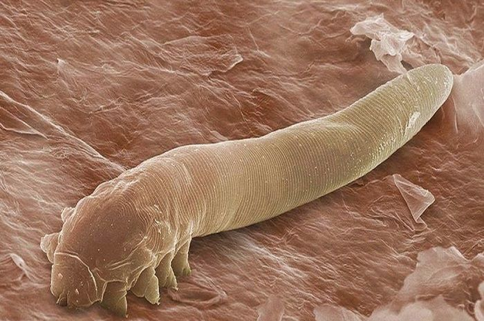 Demodex folliculorum