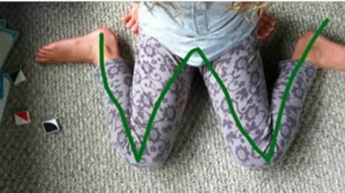Posisi kaki membentuk huruf W.