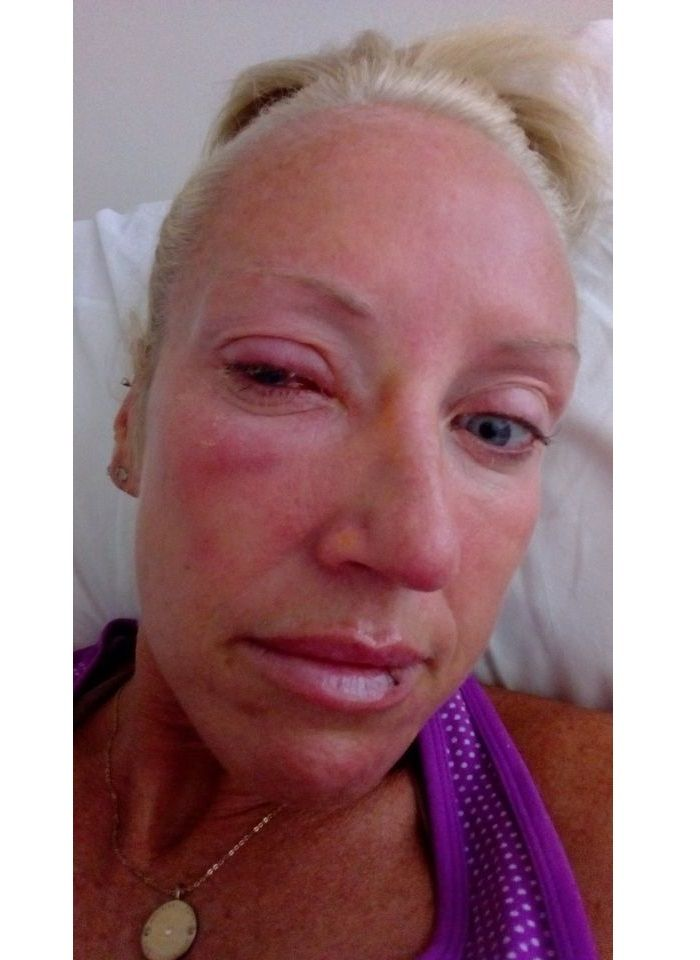 Perempuan ini harus kehilangan penglihatannya setelah menggunakan lensa kontak saat mandi