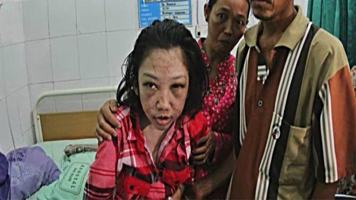 Erwiana korban penganiayaan