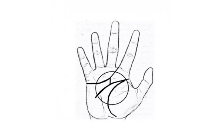 tanda M di telapak tangan