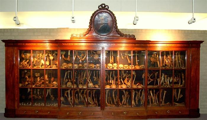 Salah satu koleksi Museum Vrolik