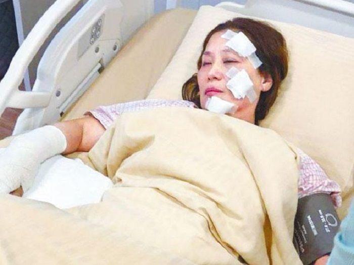 Aktris terkena luka bakar.