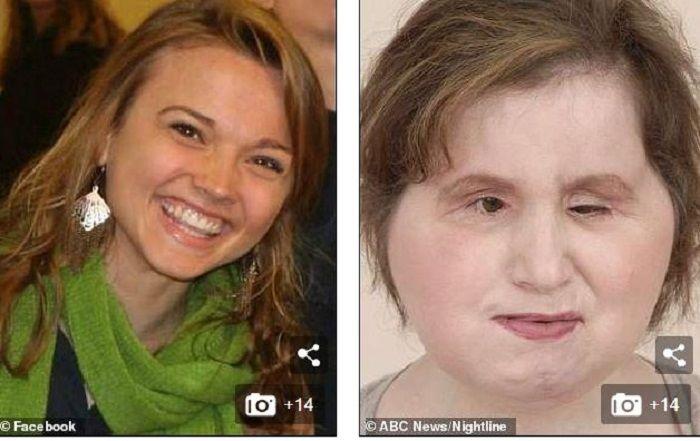 dailymail Katie Stubblefield sebelum dan sesudah tranplantasi wajah.