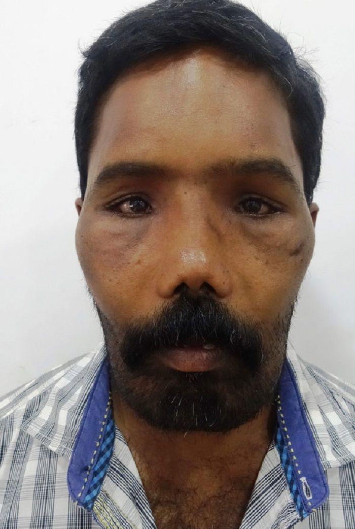 Michael Havis Suresh setelah dioperasi