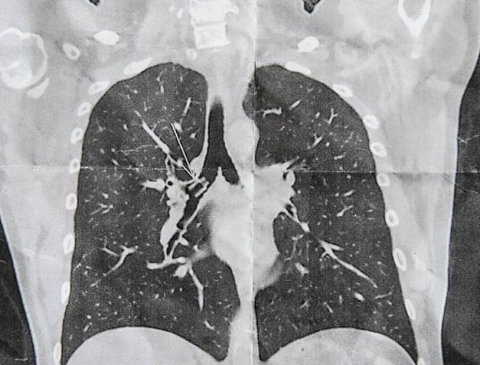 Hasil CT Scan paru-paru Alan O'Brien