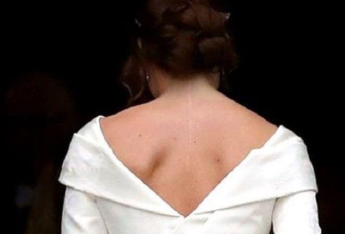 Bekas luka saat Putri Eugenie dioperasi