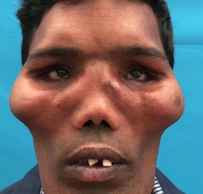 Laki-laki dengan <a href='http://belitung.tribunnews.com/tag/sindrom-wajah-singa' title='sindrom&nbsp;wajah&nbsp;singa'>sindrom&nbsp;wajah&nbsp;singa</a>