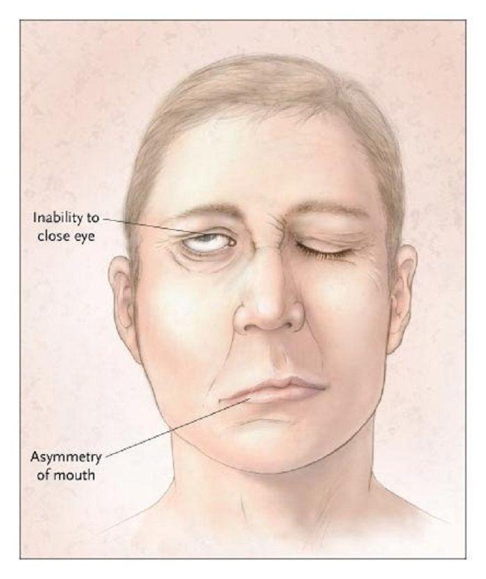 (Ilustrasi) Gejala stroke seperti kelumpuhan pada wajah.