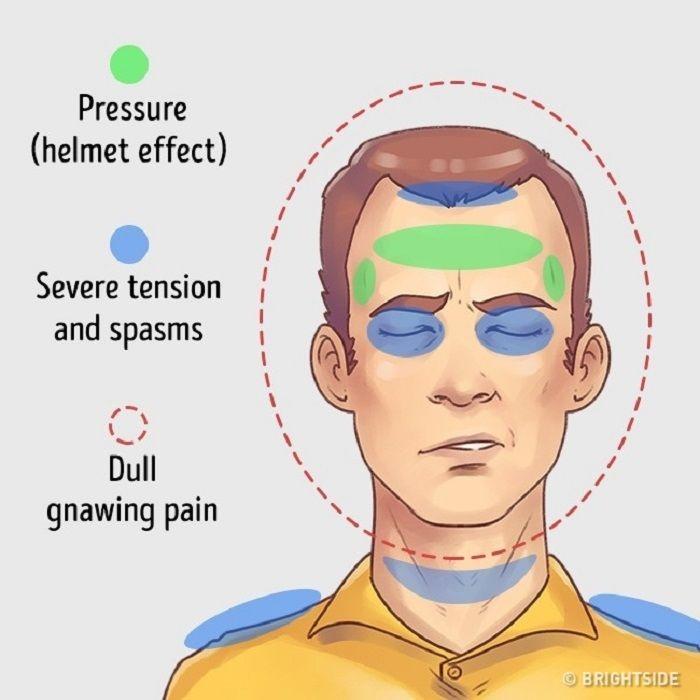 Sakit Kepala Di Bagian Alis Mata