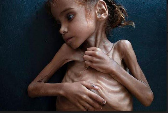 Amal Hussain, nama gadis cilik yang potretnya ramai diperbincangkan dunia internasional baru-baru ini.