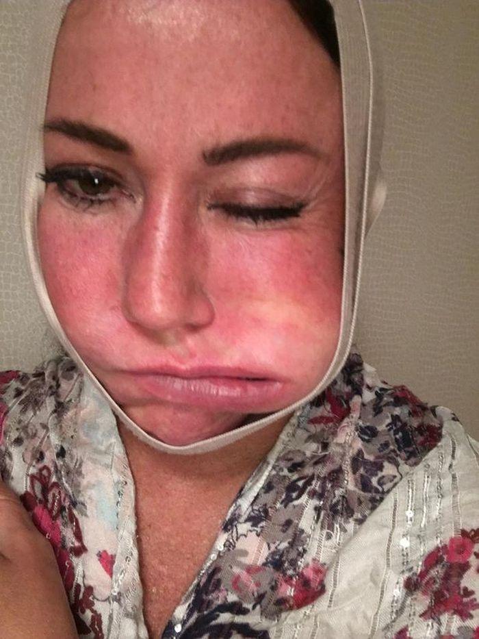 Kondisi Lisa Appleton dengan mulut bengkak setelah operasi plastik di wajah dan kelopak mata