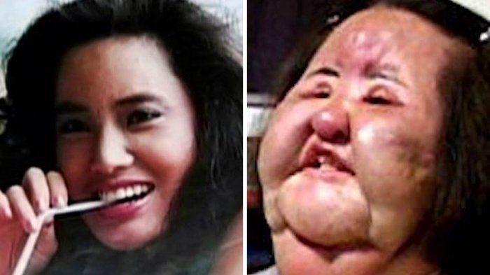 Hang Mioku jalani salah satu operasi plastik paling gagal di dunia