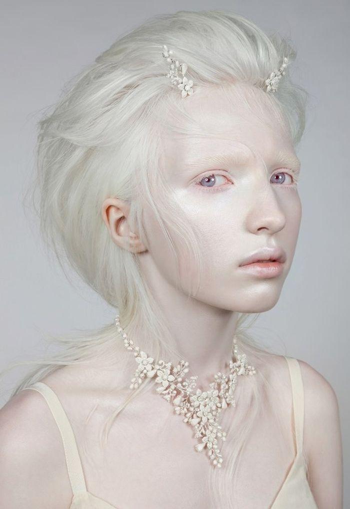 albinisme