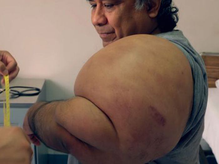 Alejandro Ramos memiliki tubuh seperti popeye.