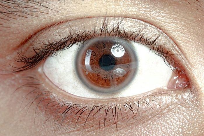 Lingkaran putih di sekitar iris mata