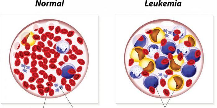 Ilustrasi leukemia