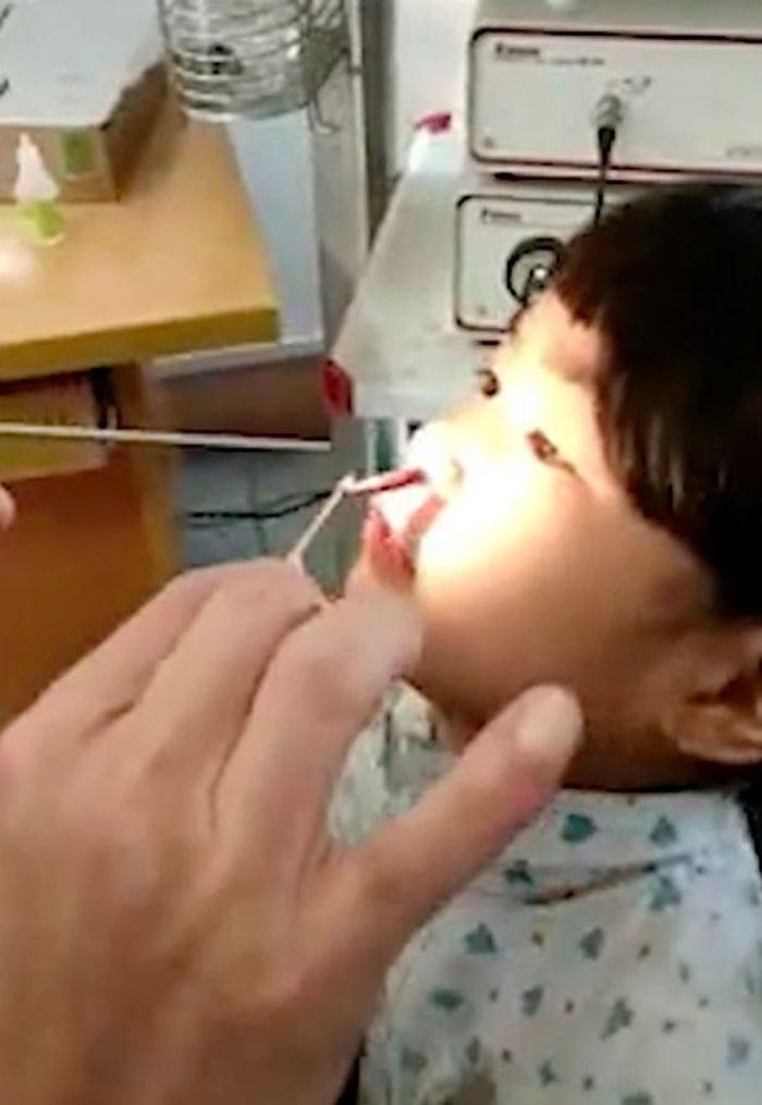 Cacing tumbuh di dalam hidung