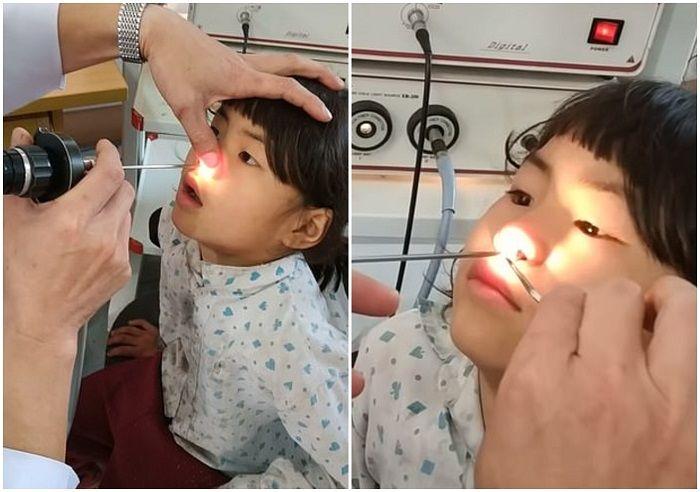 Dokter sedang memeriksa rongga hidung gadis 6 tahun asal Vietnam